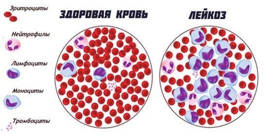помощь при онкологии