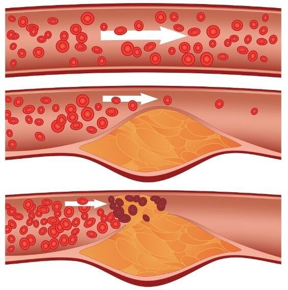 риск развития атеросклероза