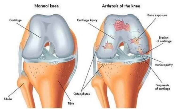 гипермобильность суставов